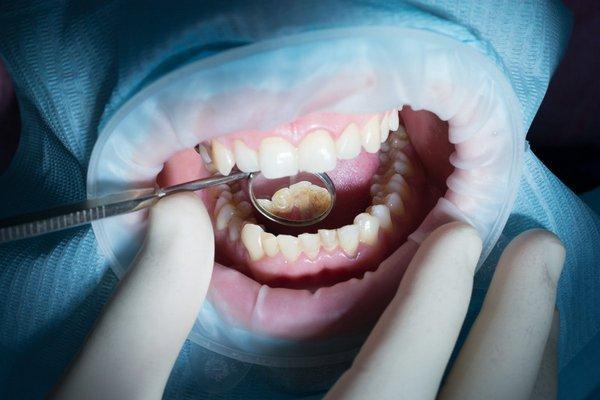 Лечение кариеса передних зубов