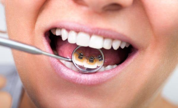 Конструктивно такая система представляет собой дуги, соединенные специальными замками – брекетами, укрепляемыми на поверхности зубов