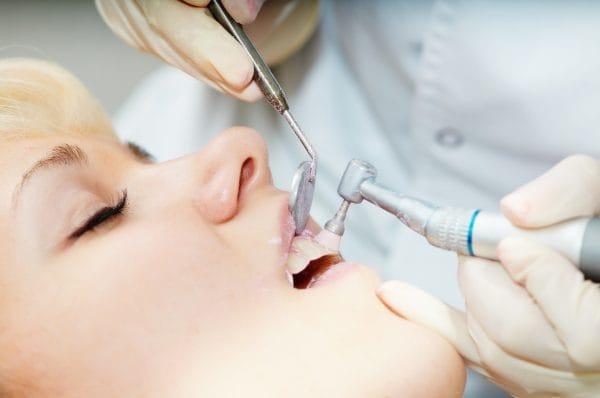 После полировки врач наносит на зубы специальные защитные составы, как правило, лак с добавлением фтора