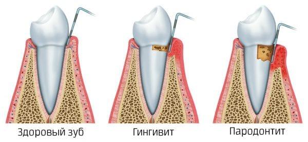 Запущенный пародонтит нередко приводит к расшатыванию и подвижности зубов