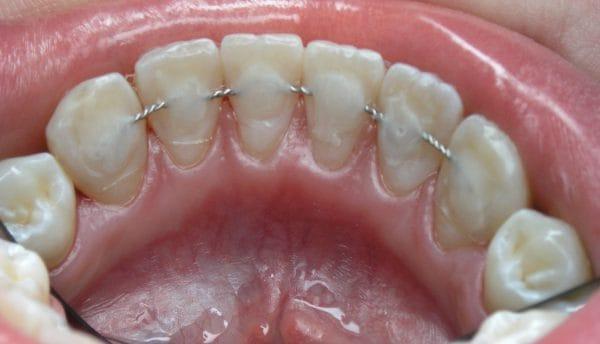 Шинирование зубов при пародонтите