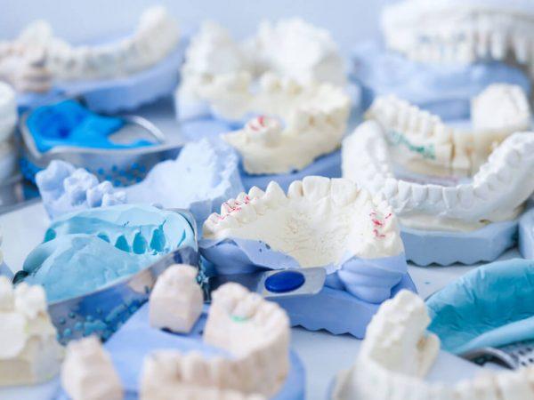 Изготовление диагностических моделей челюстей