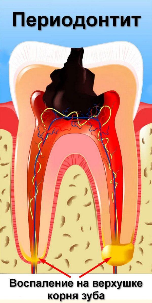 Осложнение кариеса с воспалительными изменениями в области околокорневых тканей зуба