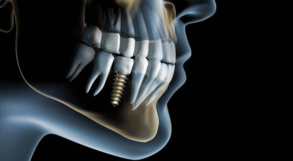 Протезирование при отсутствии одного зуба