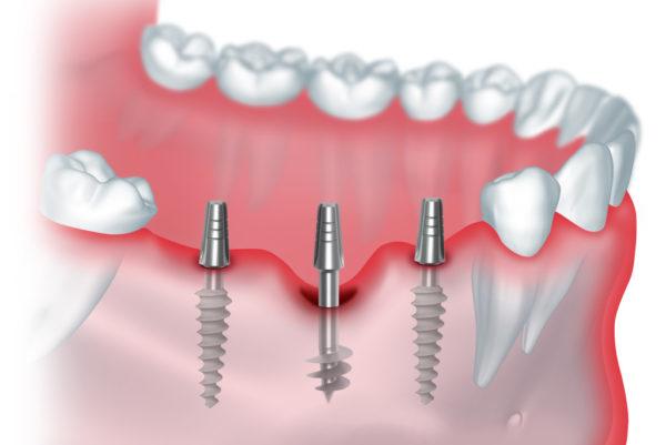 консультации по протезированию зубов и имплантации