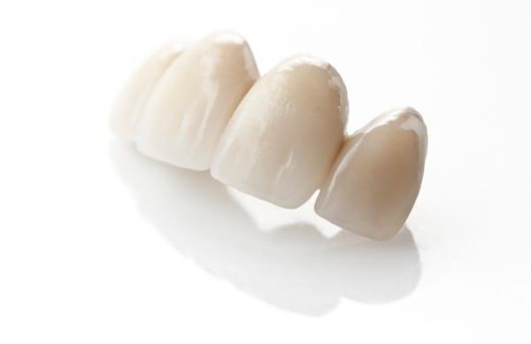 И зубные коронки, выполненные из оксида циркония, и металлокерамические, и металлопластмассовые искусственные зубы имеют превосходные эстетические характеристики