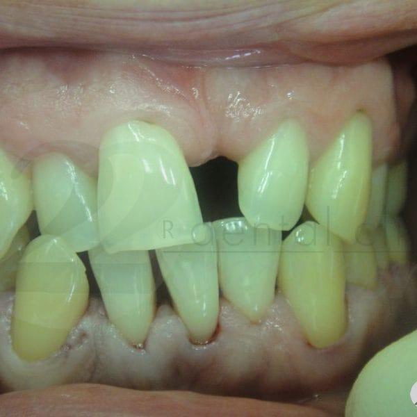 Частичное отсутствие зубов, деформация зубных рядов, пародонтит III степени