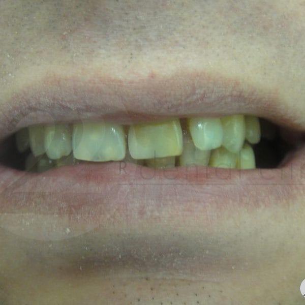 Крапчатость зубов, чрезмерно большие диастемы между зубами