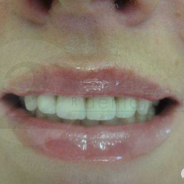 Металлокерамика на передние верхние зубы с уступом и плечевой массой