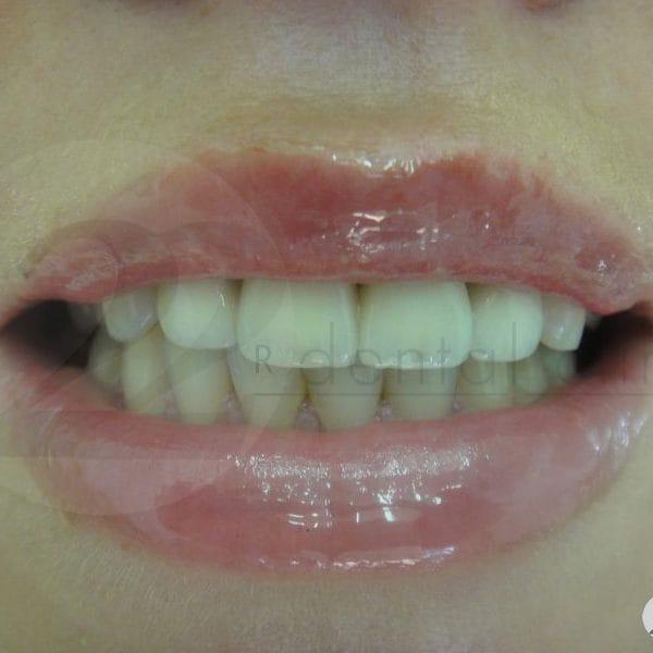 Металлокерамика на передние верхние зубы с уступом и плечевой массой 2