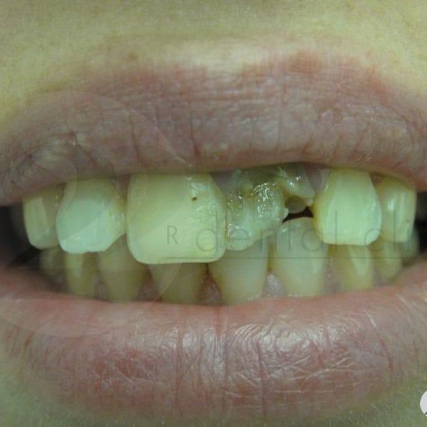 Травматический перелом переднего зуба, множественные пломбы на других передних зубах