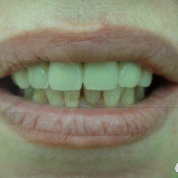 К сожалению, пациентка отказалась от лечения нижних зубов