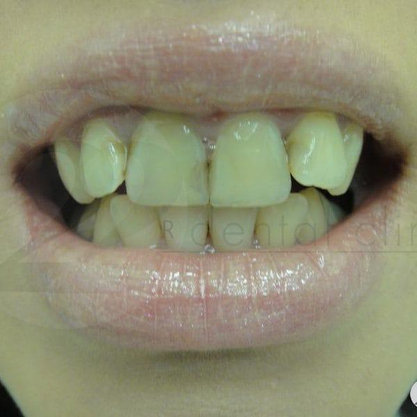 Множественные кариозные поражения передних зубов