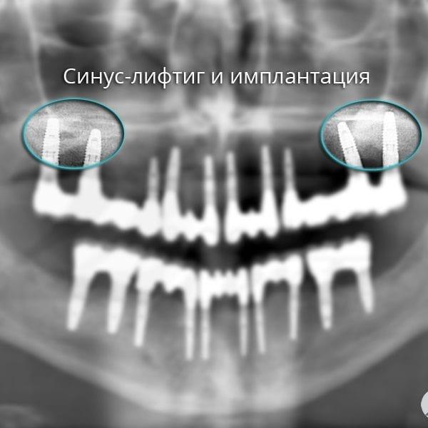 Синус-лифтиг и имплантация зубов