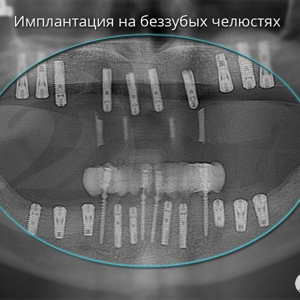 Имплантация на беззубых челюстях