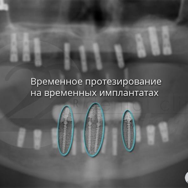 Временное протезирование на временных имплантатах