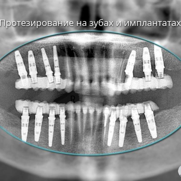 Протезирование на зубах и имплантатах